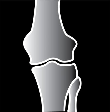 Xray Of A Knee Joint