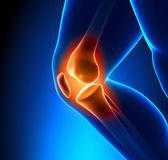 Close-up di ginocchio doloroso