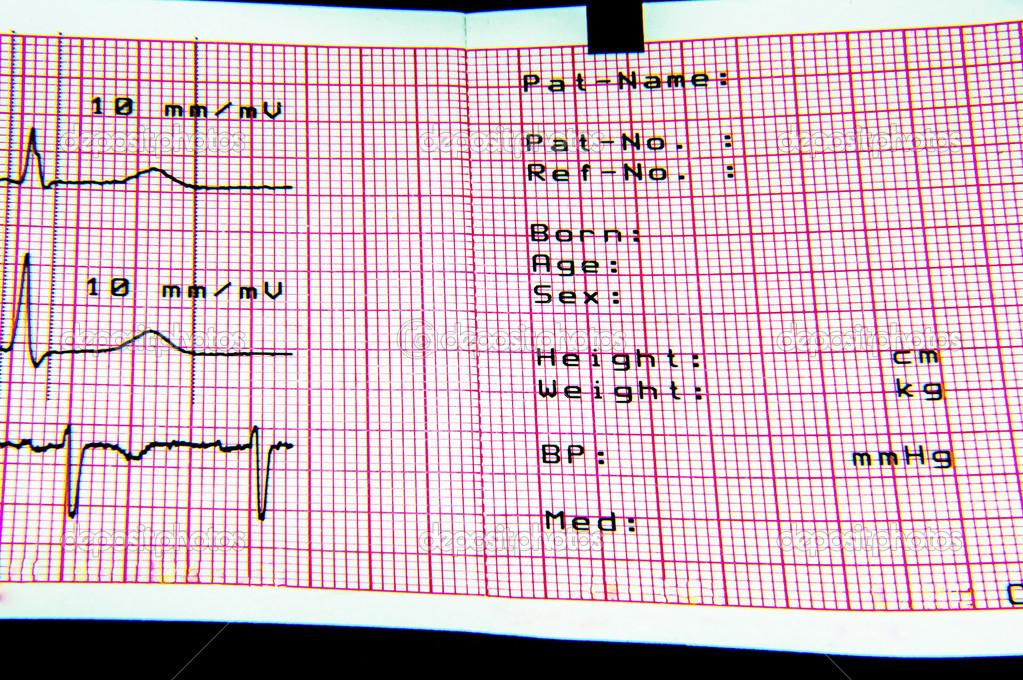 ECG Diagnostic Sheet — Stock Photo © promicrostockra #19895223