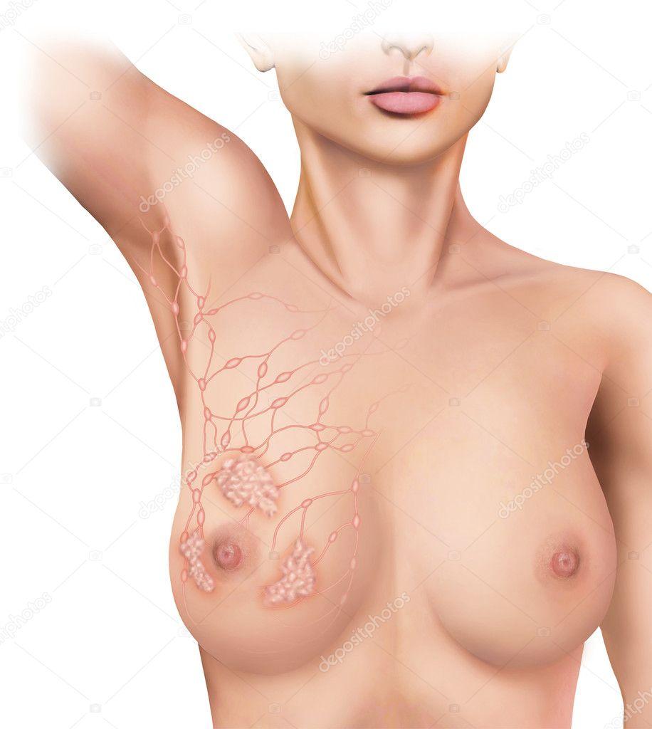 Degeneration of the lymph nodes stock vector