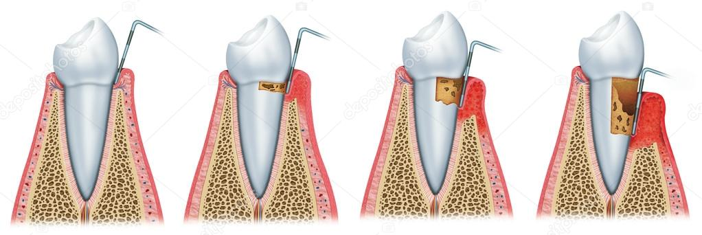 Development of periodontitis