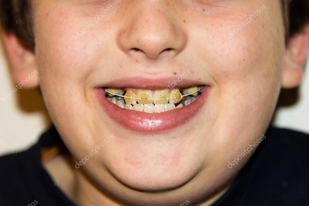 how to get whiter teeth with braces on