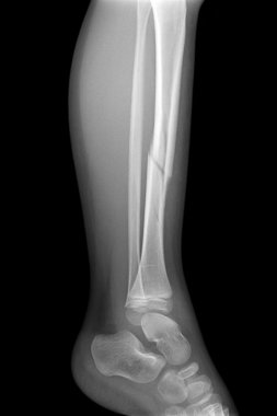 Broken leg x-rays image showing plate and screw fixation tibia and fibula bone