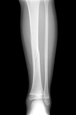 Broken leg x-rays image presenting plate - screw fixation tibia and fibula bone
