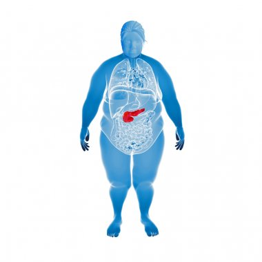 3d rendered illustration of the overweight female pancreas