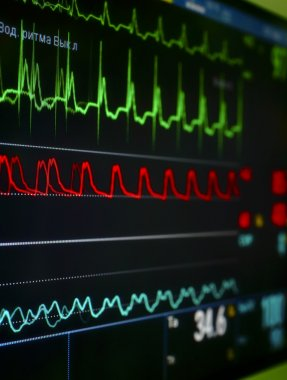 Monitor in the ICU.