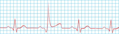 Heart Attack Stroke On Electrocardiogram Record
