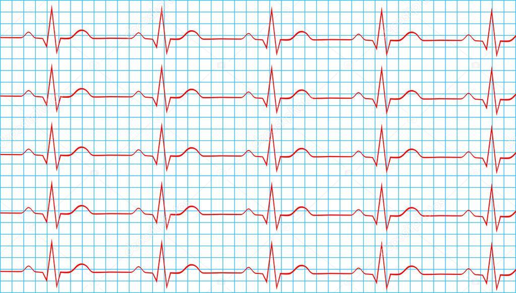 Pictures : normal sinus rhythm | Heart Normal Sinus Rhythm