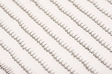 Normal Electrocardiogram Record