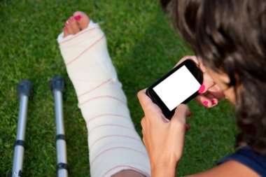 Leg in plaster and blank screen smart phone