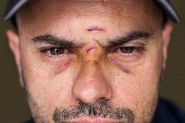Black eyes of a injured man