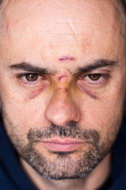 Injured man with black eyes