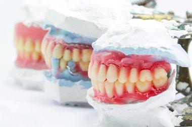 Wax denture,dental models showing different types