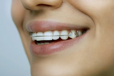 smiling girl with retainer on teeth
