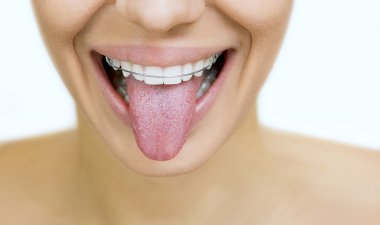 girl with retainer for teeth sticking her tongue out