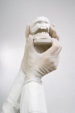 Dental Casting - hands holding dental gypsum models