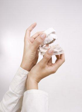 Dental Casting - hands holding dental gypsum models, dental conc