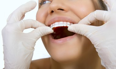 orthodontic doctor examine teeth and gums of jaw, retainer for t