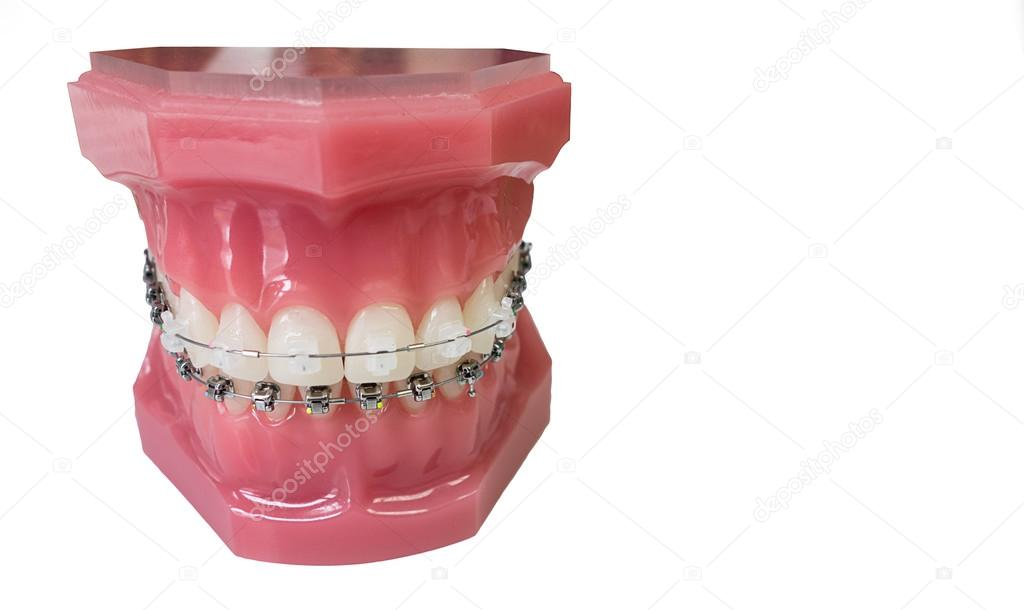 Dental braces model — Stock Photo © marcbruxelle #23929323