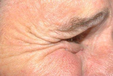 Close up of wrinkles around eye