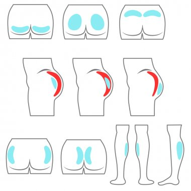 Location buttocks and calf implants