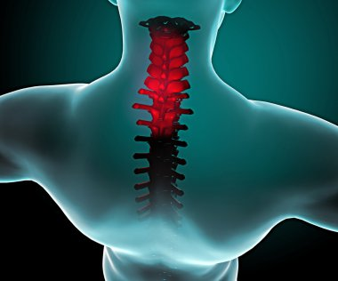 Pain in the neck and spine in a x-ray vision