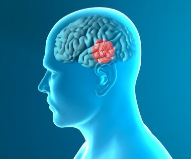 Brain degenerative diseases, Parkinson