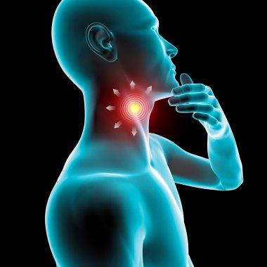 Sore throat inflammation, redness, pain