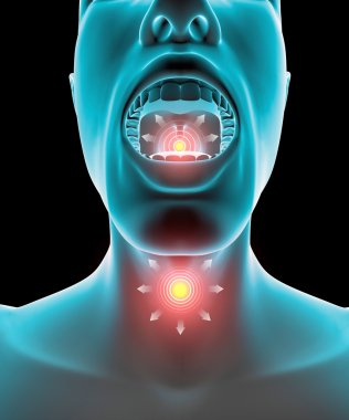 Sore throat inflammation, pain, redness