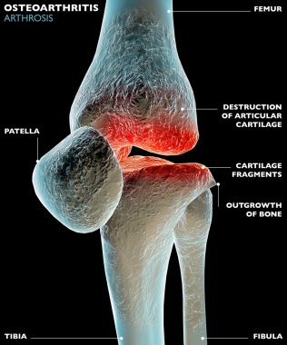 Knee leg bone
