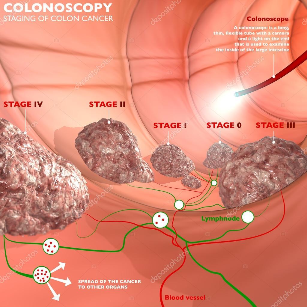 free colonoscopy in southern california - HD4724×4724