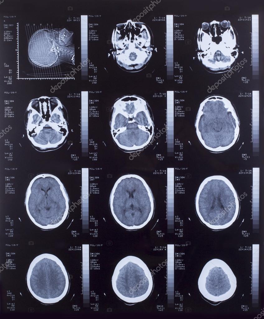 closeup von ein ct-scan mit gehirn — Stockfoto © Gloszilla8 #39399157