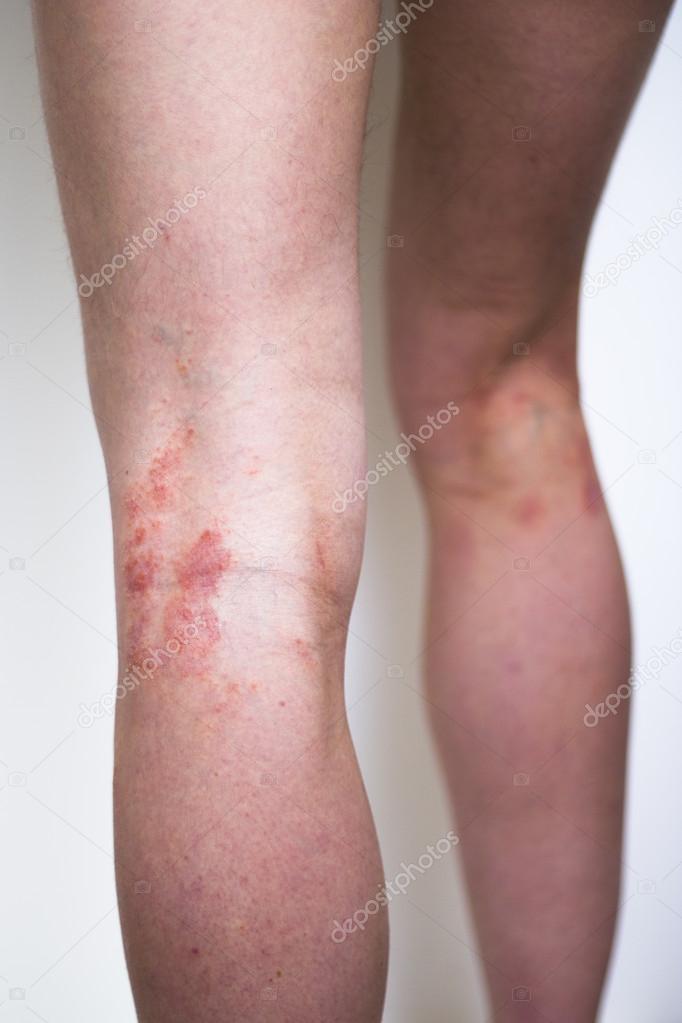 teljes psoriasis kezelsi rend