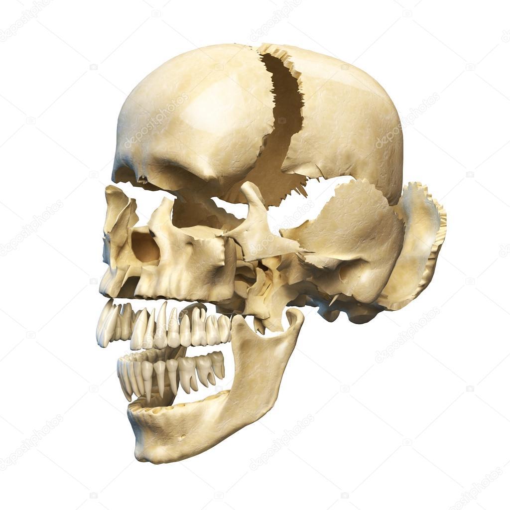 cráneo humano explotado en piezas — Fotos de Stock © Pixelchaos ...