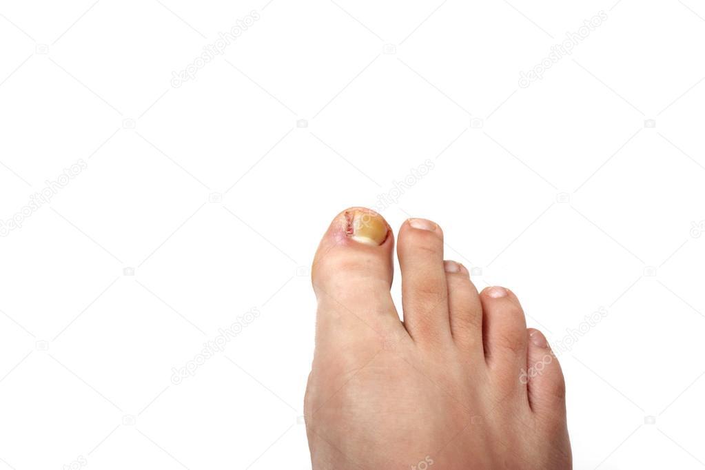 Removed ingrowing toe nail — Stock Photo © Adam88xxx #29596647