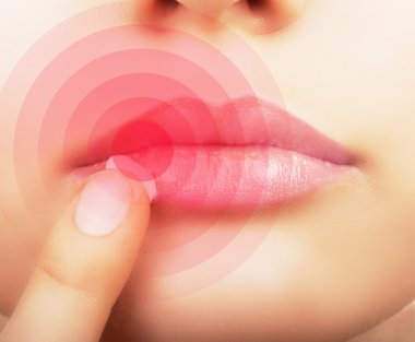 Lips affected by herpes.