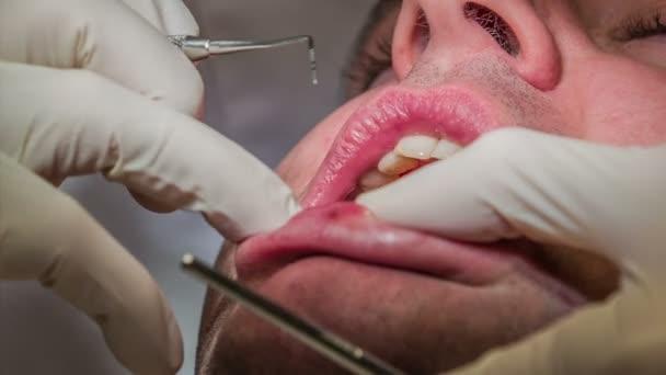 zubař začíná vrtat na horních zubů zubní pacient