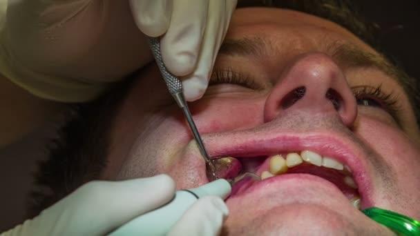 zubař je vymývání klienta horní zuby