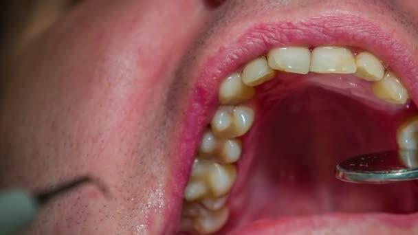 dentista sta controllando i denti superiori del client con uno specchio