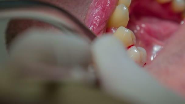 pacient je guma je krvácení kvůli zubař intervence
