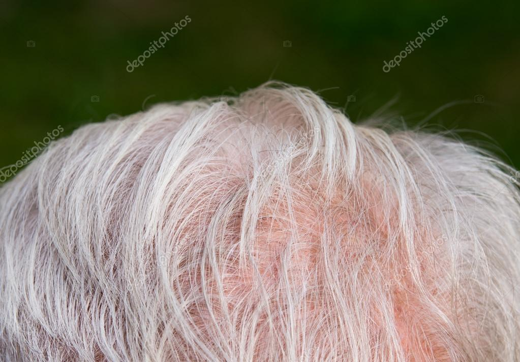Ausdünnen Der Haare Stockfoto Budabar 30805123
