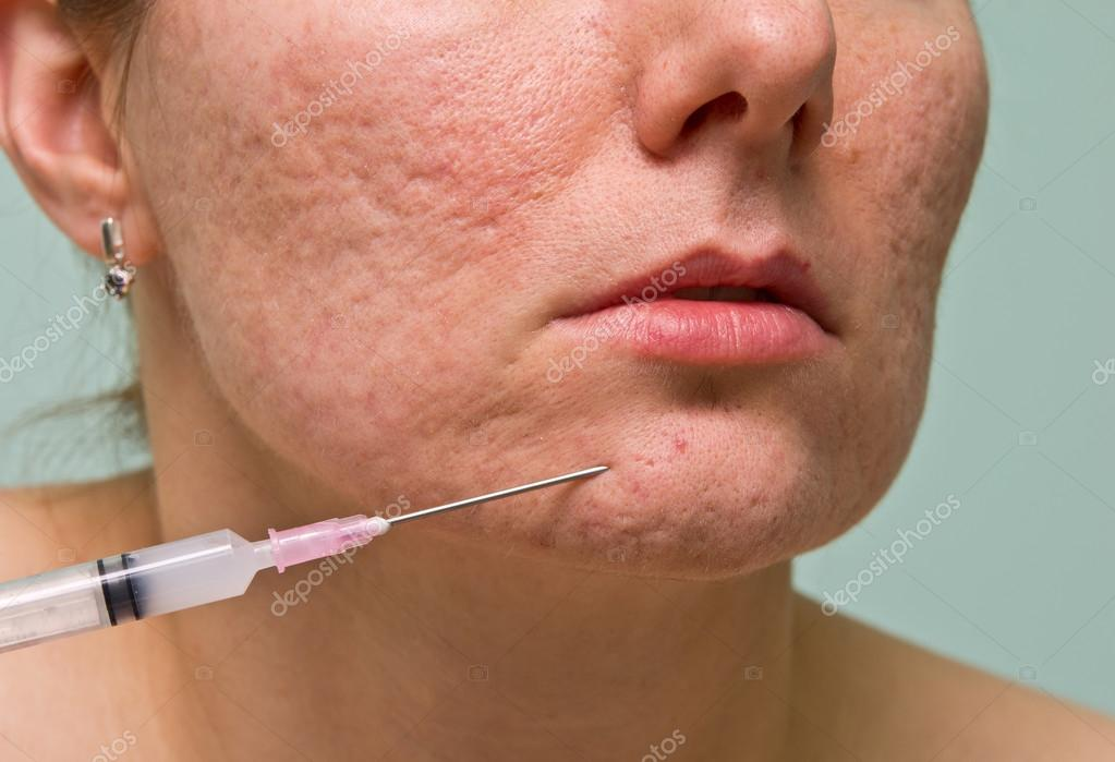 smittar acne