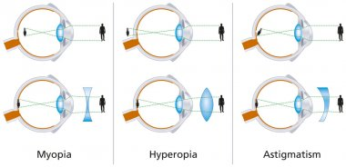 Vision Defects - Myopia, Hyperopia And Astigmatism