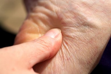 Massage to the heel of the foot