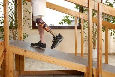 Male prosthesis wearer training to walk uphill