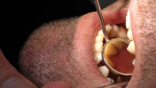 Tooth Care in Dentist