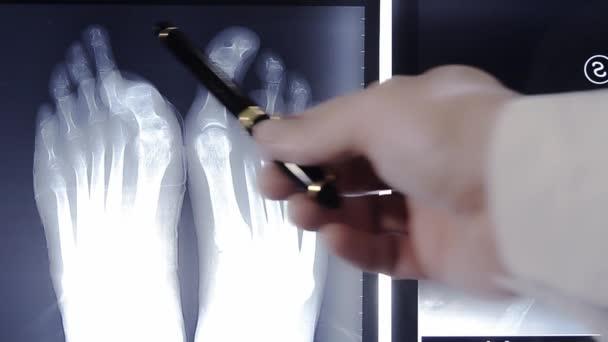 医師の足指用 x 線フィルム上に公開を調べる