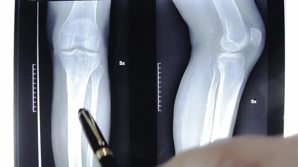 lékař zkoumá RTG snímek kolena