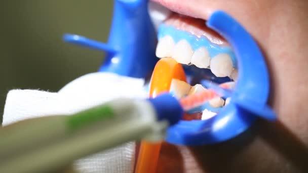 Dentist dental cleaning, whitening