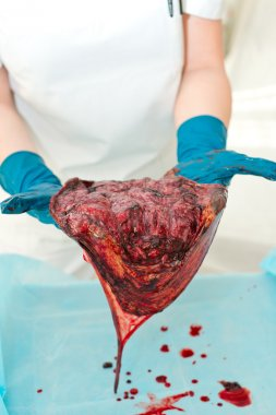 Midwife, a doctor examines the consequences, the placenta after birth. End of the third stage of labor.